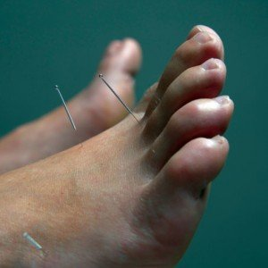 acupuncture-needles-in-foot-points_smzihz.jpg