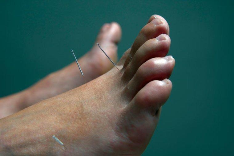 acupuncture-needles-in-foot-points_smzihz.jpg