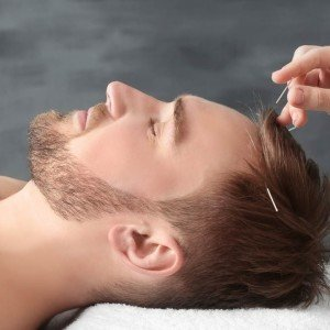 young-man-getting-scalp-acupuncture.jpg