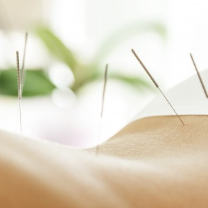 acupuncture for depression.jpeg