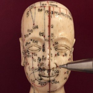 acupuncture for thyroid.jpg